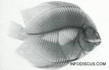 Radiographie d'un Discus